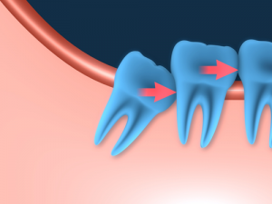 Bite Sized Wisdom- Knowing the Facts on Wisdom Teeth