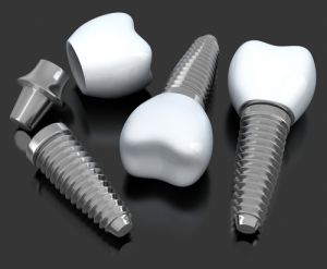 Dental Implants - 3 Step