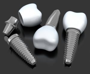 Dental Implants - 3 Step