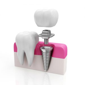Dental Implants-High Tech Teeth