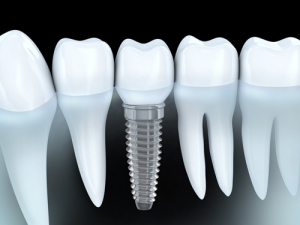 Dental Implants-What to Expect