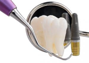 Dental lmplants vs Dentures