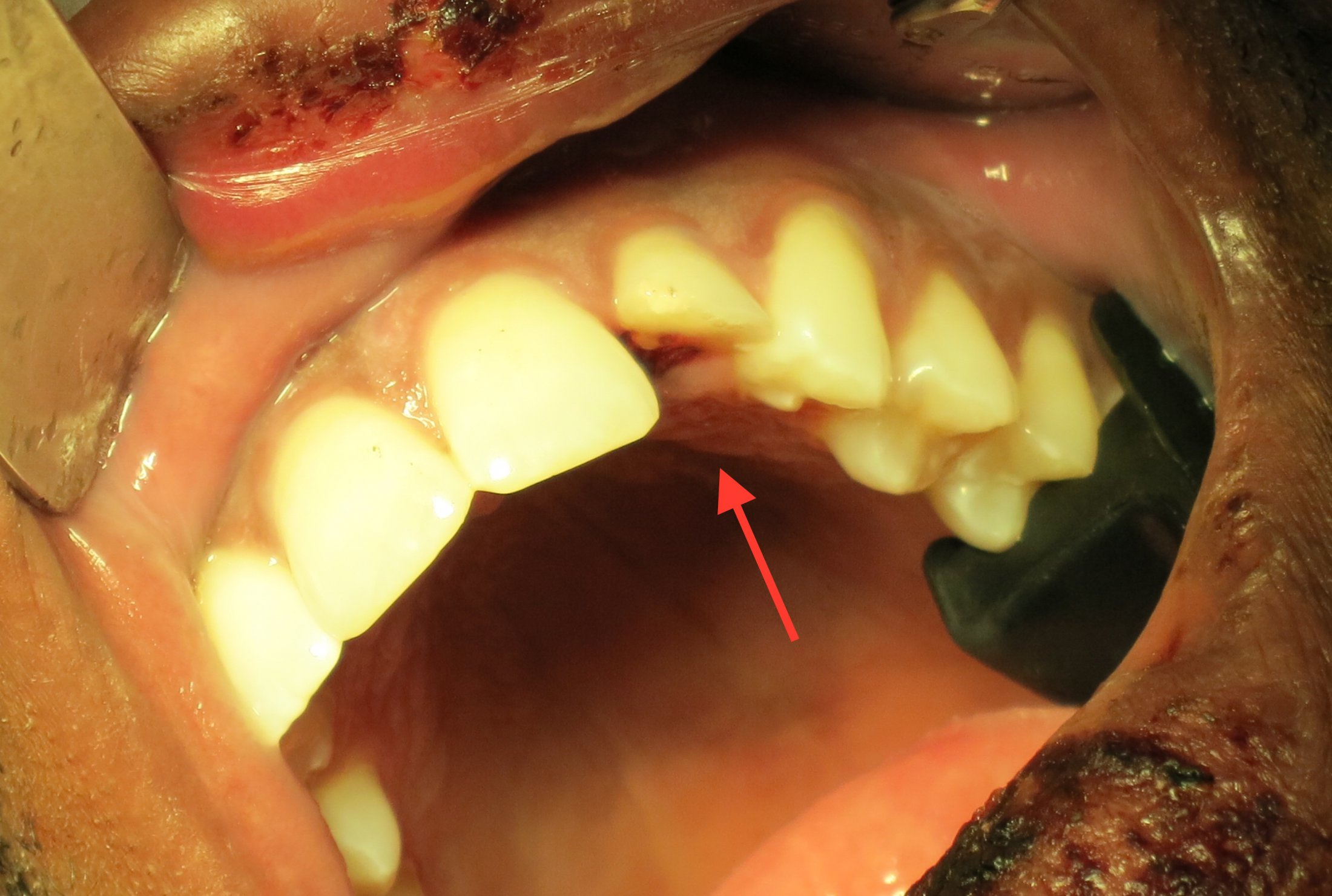 Tooth Trauma Complicated Crown Root Fracture What Now