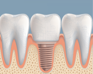 'implant between teeth'