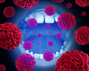 'cancerous cells entering mouth'