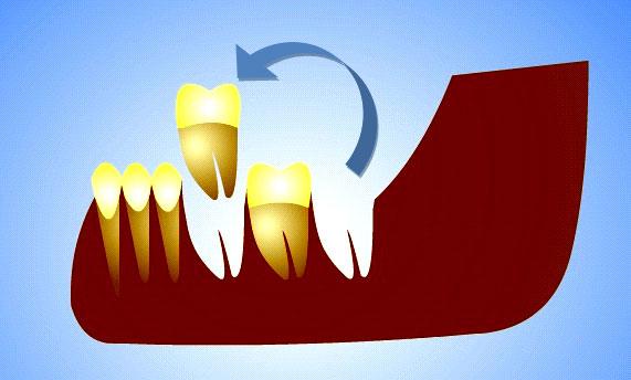 Tooth Autotransplantation Dr Massoomi