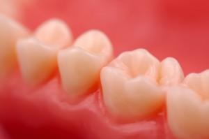 third_molar_grafting