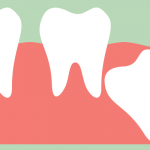 Wisdom teeth removal is one of the Cupertino oral surgery options offered by Dr. Massomi.