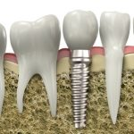 Cupertino oral surgeon Dr. Massoomi offers dental implants.