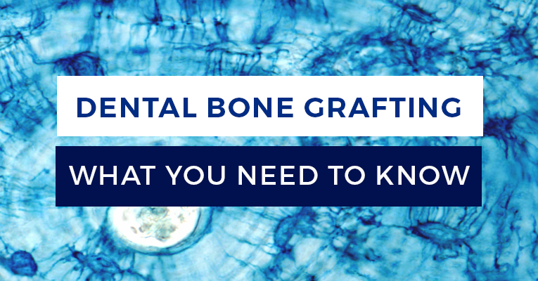 Everything you need to know about Dental Bone Grafting