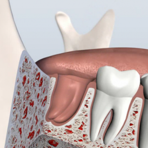Socket Preservation In San Francisco Stop Jaw Bone Loss After Tooth Extraction In Cupertino Dr Nima Massoomi Dmd Med Md